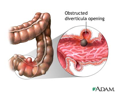 Diverticulosis And Diverticulitis Gi Consultants Of